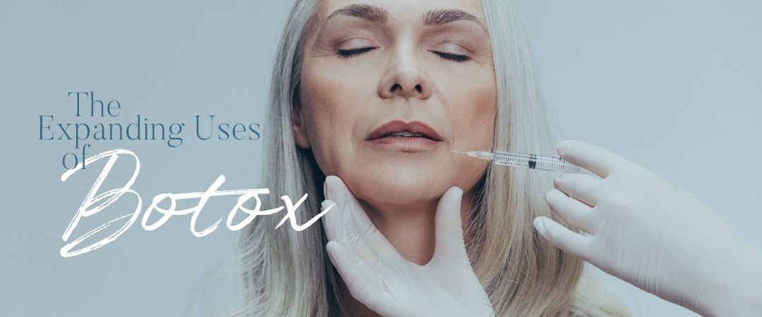 Expanding uses of botox for migraines