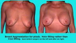 Breast Elevation