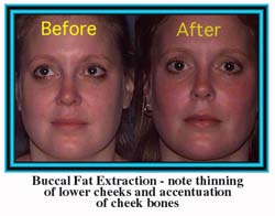 Buccal Fat Extraction
