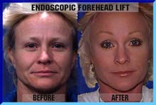 Endoscopic Laser Forehead Lift