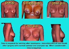 Breast Elevation