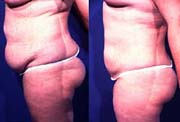 Tummy Contouring