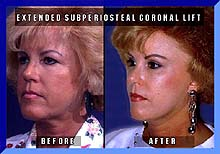 Extended Subperiosteal Coronal Lift
