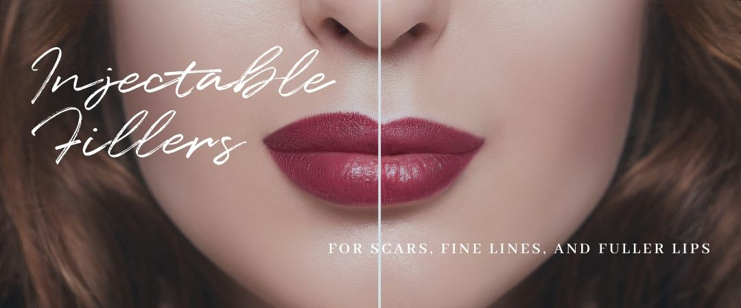 injectable fillers for scars, fine lines, and fuller lips